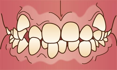 叢生(そうせい)/乱杭歯、八重歯